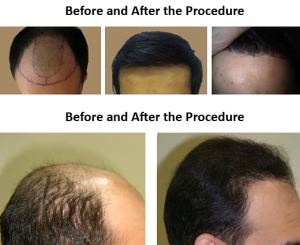 Hair-Transplantation-before-after-pics-09