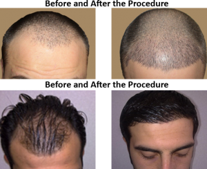 Hair-Transplantation-before-after-pics-101