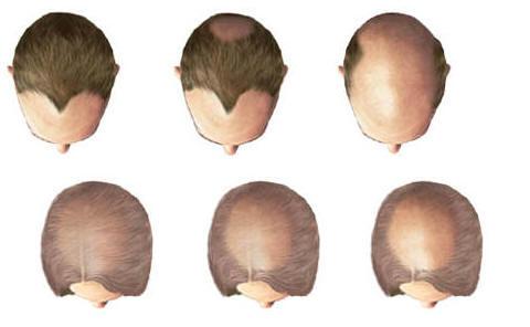 الخيارات غير الجراحية لتساقط الشعر