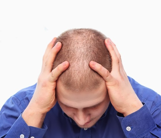 زراعة شعر رأس كامل فى جلسة واحدة
