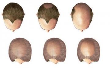 أفضل خيارات لزراعة الشعر