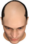 Complete Balding of the Upper Head