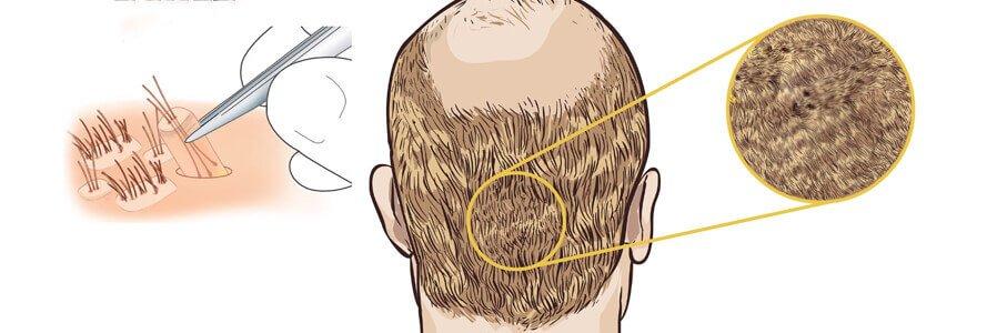 fue-hair-transplantation