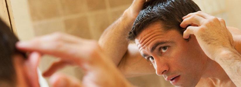 hair-shedding-man