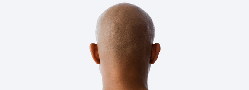 fight-balding-with-fue-hair-transplant