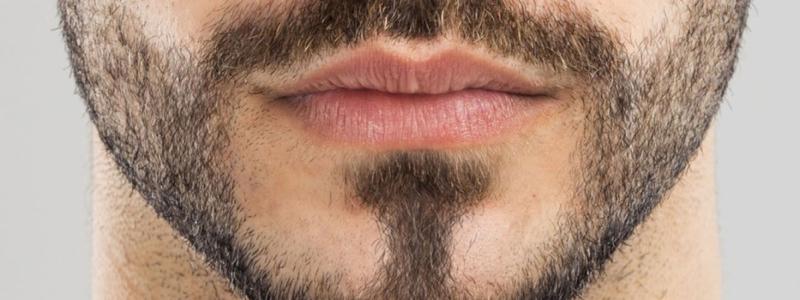أهم الاشياء التي يجب أن تعرفها قبل زراعة شعر اللحية