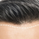 How Many Grafts Do I need for a Good looking Hair Transplant